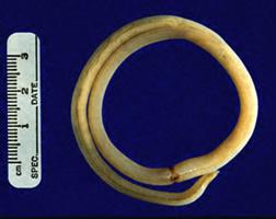 ascaris lumbricoides picture
