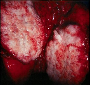 lung cancer picture or image